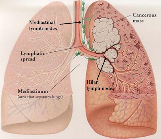 November is Lung Cancer Awareness Month: Be informed of Right testicular mass icd 10